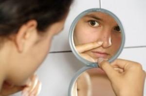 acne prone skin, acne
